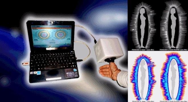 bioelectrografia-gdv-min